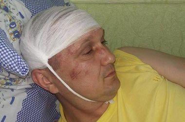 В Сумской области избили депутата-
