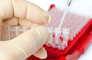 Ученые научились предсказывать рак до его появления