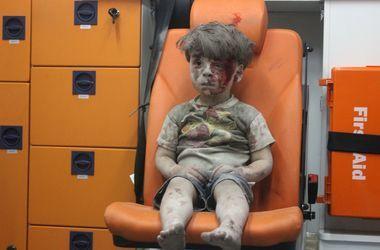 В ЮНИСЕФ обнародовали шокирующую статистику по гибели детей в сирийском Алеппо